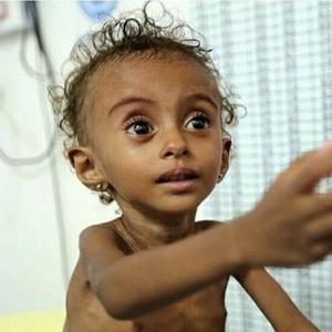Urgence Malnutrition